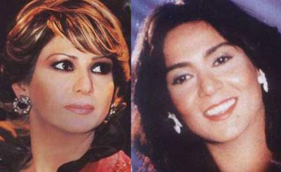 صور الفنانات العربيات قبل عمليات التجميل 1