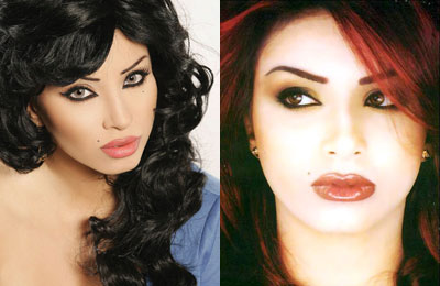 صور لفنانات عربيات قبل و بعد عمليات التجميل ، مش هاتعرفوهم؟؟؟؟؟؟؟؟؟؟ 10