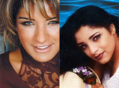 صور الفنانات العربيات قبل عمليات التجميل 11