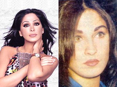 صور لفنانات عربيات قبل و بعد عمليات التجميل ، مش هاتعرفوهم؟؟؟؟؟؟؟؟؟؟ 15