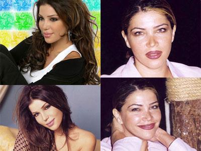 صور الفنانين قبل عمليات التجميل|صور شيرين|صورهيفاء وهبى|صور نانسى قبل عمليات التجميل 20.jpg