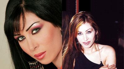 صور الفنانين قبل عمليات التجميل|صور شيرين|صورهيفاء وهبى|صور نانسى قبل عمليات التجميل 21.jpg