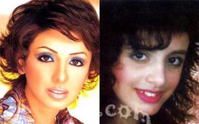 صور الفنانين قبل عمليات التجميل|صور شيرين|صورهيفاء وهبى|صور نانسى قبل عمليات التجميل 23.jpg