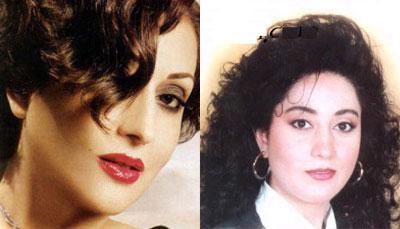 صور الفنانات قبل وبعد عمليات التجميل 26.jpg
