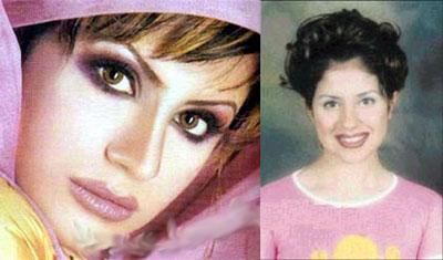 صور الفنانين قبل عمليات التجميل|صور شيرين|صورهيفاء وهبى|صور نانسى قبل عمليات التجميل 28.jpg