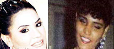 صور الفنانين قبل عمليات التجميل|صور شيرين|صورهيفاء وهبى|صور نانسى قبل عمليات التجميل