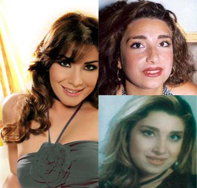 صور الفنانات قبل وبعد عمليات التجميل 33.jpg