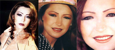 صور الفنانين قبل عمليات التجميل|صور شيرين|صورهيفاء وهبى|صور نانسى قبل عمليات التجميل 6.jpg