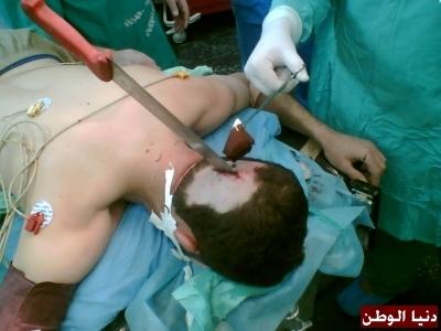 عملية جراحية اخراج سكين جمجمة