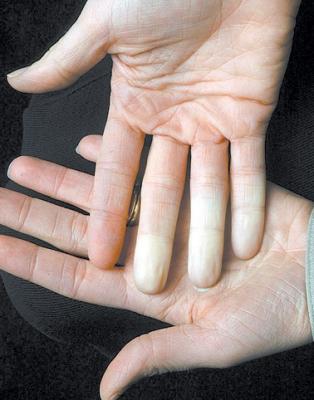,', ..أصابع اليد والقدم الباردة.. لماذا تحدث؟ . ,',