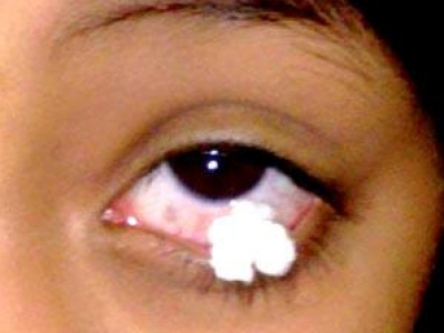حكاية طفلة سعودية تبكي بدلاً من الدموع مناديل 9199566220