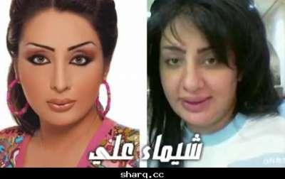 الفنانات الخليجيات وبعد عمليات التجميل 3909772561.jpg