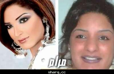 الفنانات الخليجيات وبعد عمليات التجميل 3909772562.jpg