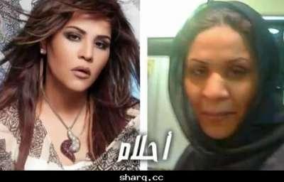 الفنانات الخليجيات وبعد عمليات التجميل 3909772563.jpg