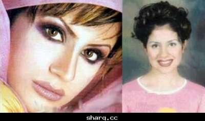 الفنانات الخليجيات وبعد عمليات التجميل 3909772565.jpg