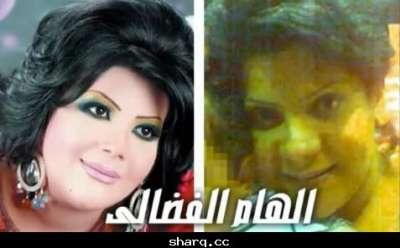 الفنانات الخليجيات وبعد عمليات التجميل 3909772567.jpg