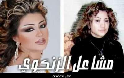 الفنانات الخليجيات وبعد عمليات التجميل 3909772568.jpg