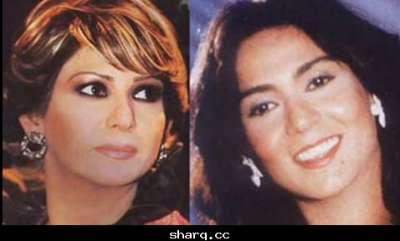 الفنانات الخليجيات وبعد عمليات التجميل 3909772569.jpg