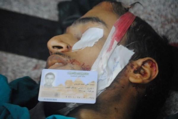 قتلى وجرحى اعتصام رابعة العدوية 3909964883.jpg