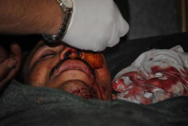 قتلى وجرحى اعتصام رابعة العدوية 3909964888.jpg