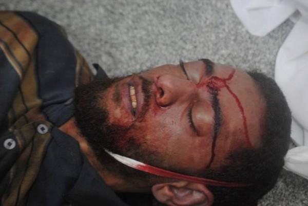 قتلى وجرحى اعتصام رابعة العدوية 3909964889.jpg