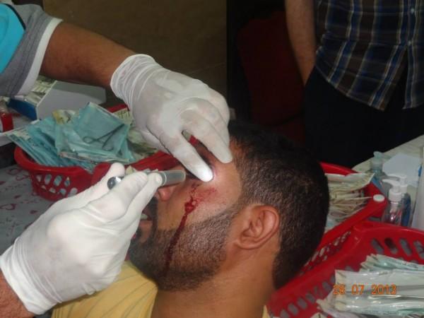قتلى وجرحى اعتصام رابعة العدوية 3909964914.jpg