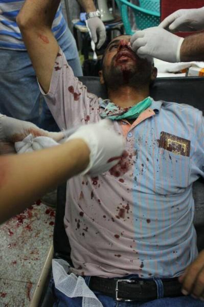 قتلى وجرحى اعتصام رابعة العدوية 3909964925.jpg