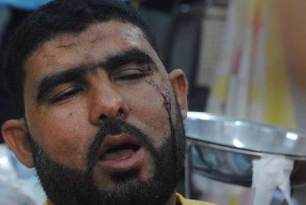 قتلى وجرحى اعتصام رابعة العدوية 3909964926.jpg