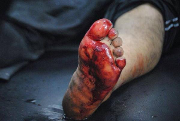 قتلى وجرحى اعتصام رابعة العدوية 3909964933.jpg