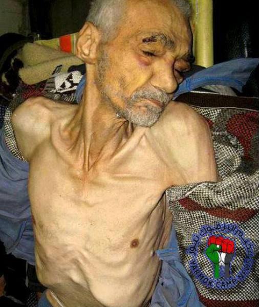 """عالمي """"النوم"""" """"الجوع"""" مؤلمة """"مجاعة """" مخيم اليرموك 3910071916.jpg"""