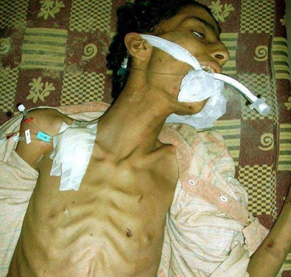 """عالمي """"النوم"""" """"الجوع"""" مؤلمة """"مجاعة """" مخيم اليرموك 3910071918.jpg"""