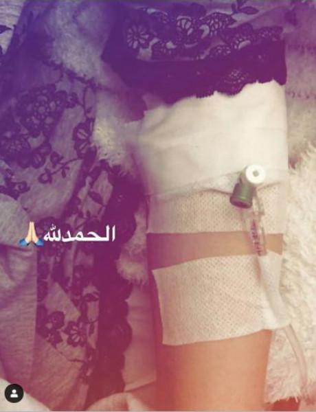 الفنانة صفاء سلطان مُصابة في الكبد