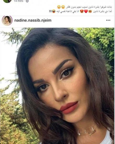نادين نسيب تصدم جمهورها ببشرتها الحقيقية