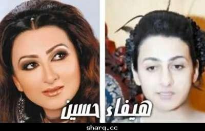 الفنانات الخليجيات وبعد عمليات التجميل 9998305862.jpg