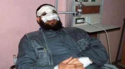 نائب برلماني يزعم الاعتداء عليه