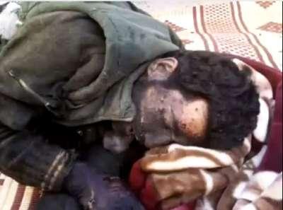 شهيد سوري يصلي وهو ينزف