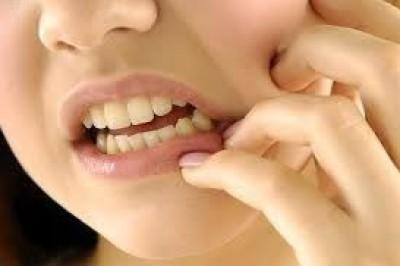 تحذير طبي من تنظيف الاسنان بعد لأكل .....
