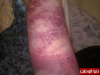 """دنيا الوطن تنشر تفاصيل جريمة """"عائلة أبو صفية"""" التي هزّت """"غزة"""" .. شاهد الصور"""