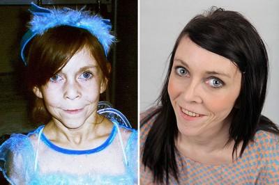 بالصور والفيديو : بسبب مرض نادر ...مراهقة في الـ 16 من العمر تبدو في الستين من عمرها