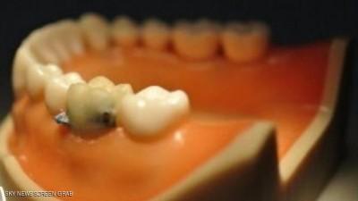 اسنان ذكية تراقب طعامك وشرابك 9998395910