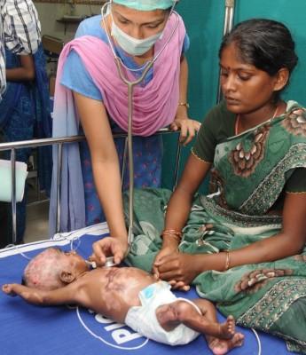 هندي يحير الأطباء يشتعل مرات