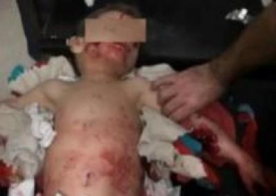 صورة: وفاة طفل اردني نهشت الكلاب اعضاءه التناسلية