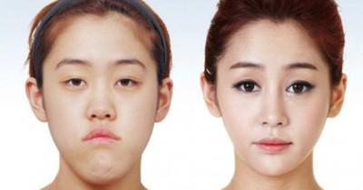 3b0d70d2c الجمال الكوري مزيف