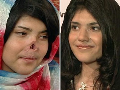 بالصور والفيديو : زوج يقطع أنف وشفتي زوجته ..تفاصيل جديدة