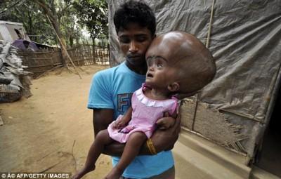 تحذير : الصور مؤلمة ... الفتاة ذات رأس البالون بعد سلسلة عمليات جراحية .. كيف تبدو؟