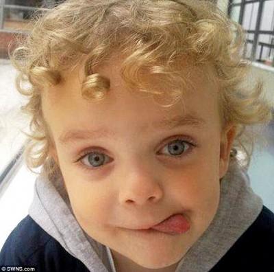 بسبب حساسيته من دواء.. شاهد ماذا حدث لهذا الطفل!!