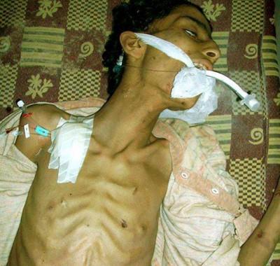 """عالمي """"النوم"""" """"الجوع"""" مؤلمة """"مجاعة """" مخيم اليرموك 9998430470.jpg"""