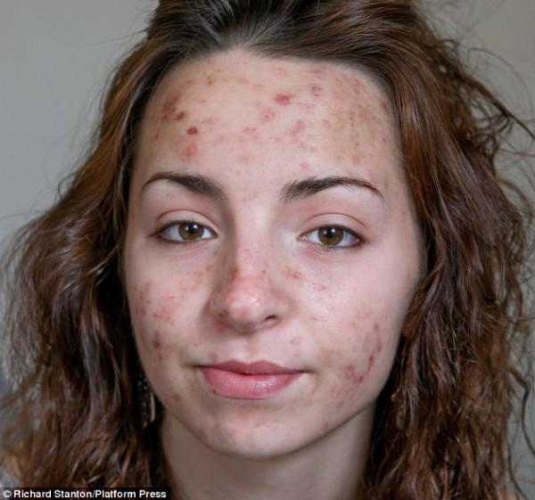 بالصور:  فتاة لا تسطيع التوقف عن خدش وجهها!
