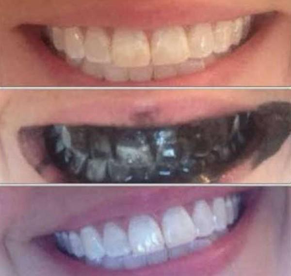 Средства для отбеливания зубов с алиэкспресс