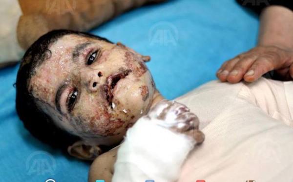 جريح يومين إبادة اسرائيل لعائلته وبقائه يصارع الموت 9998485835.jpg